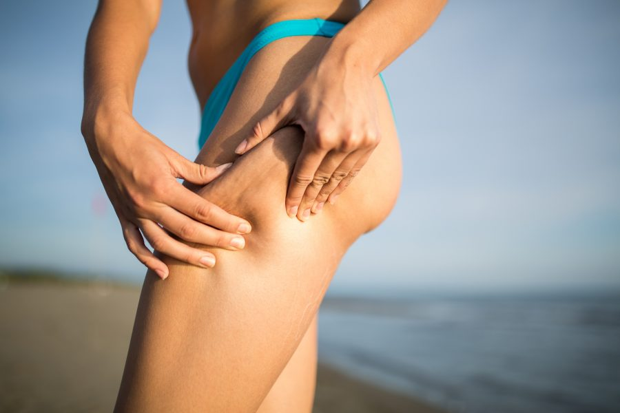 Get rid of cellulite with cryotherapy